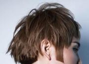 头皮发痒是什么原因 五个快速治头皮痒的方针